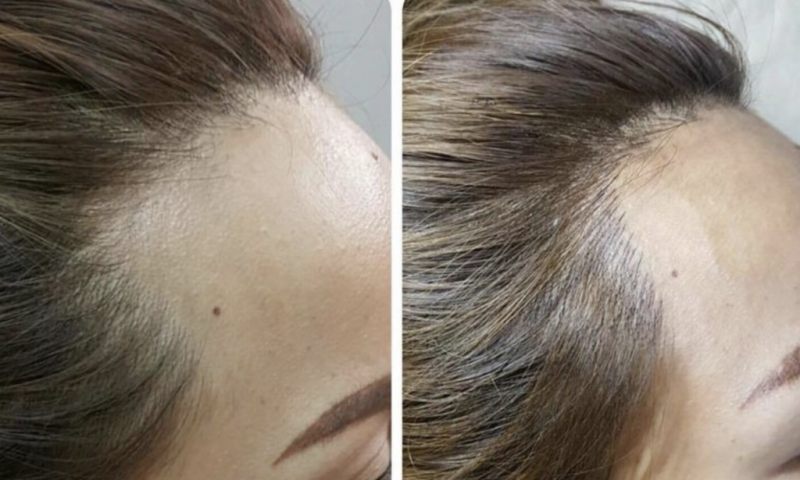 Hairline Rescue Before & After